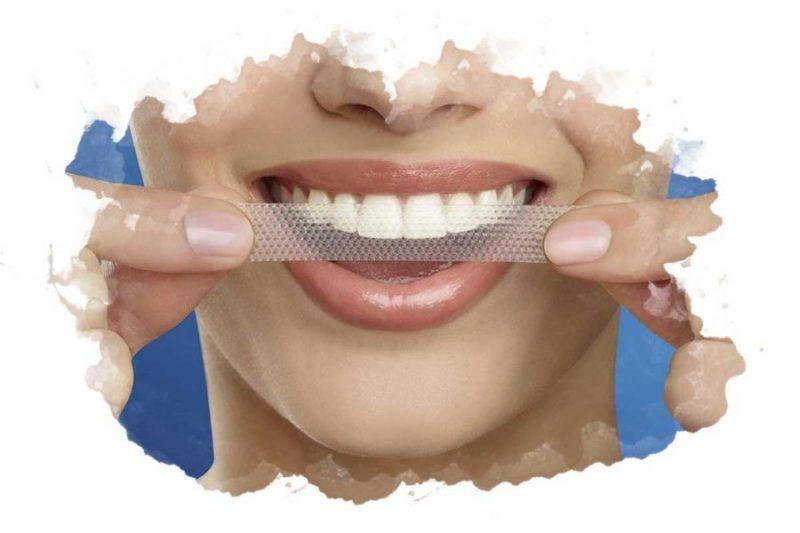 Сколько стоят отбеливающие полоски для зубов