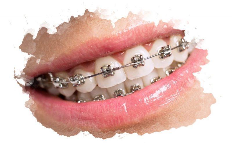 устройство для выравнивания зубов
