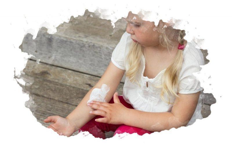 лечебные крема для детей