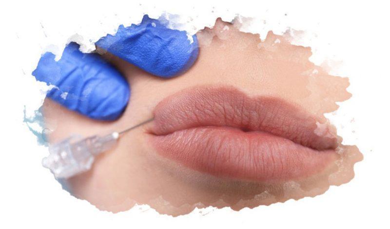 ТОП-7 лучших филлеров для губ: рейтинг 2020, как выбрать, плюсы и минусы, отзывы